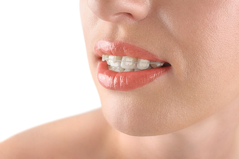 Adult orthodontic options include clear ceramic braces and Six Month Smiles | Montane Dental Care