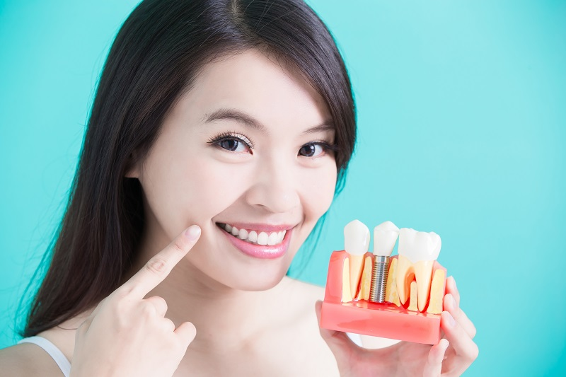 Woman holding a model of a dental implant and pointing to mouth