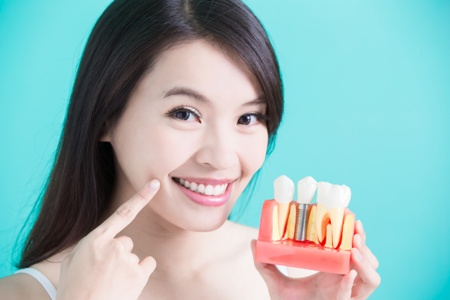 Asian-American woman holding a model of a dental implant points to her smile