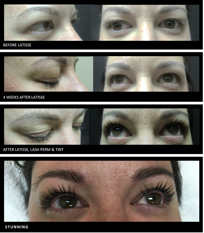 before and after eyelash extension with Latisse, lash perm, and tint