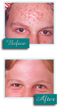 before and after photodynamic therapy with Levulan for acne on the forehead