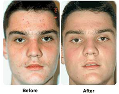 young man before and after blue light acne treatment