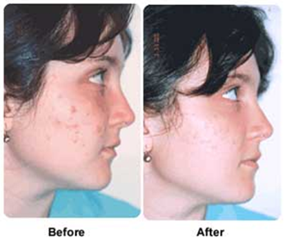 young woman before and after photodynamic acne therapy