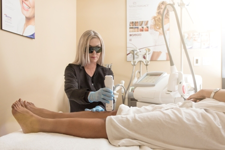 laser hair removal of the legs