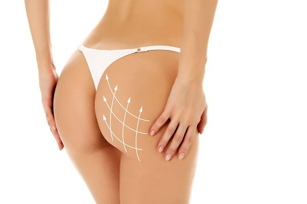 buttock augmentation patient in Orange County, CA