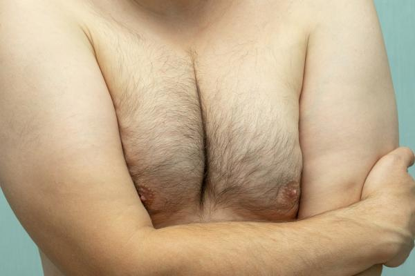 man with gynecomastia (enlarged male breasts)