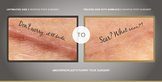 Embrace The Latest And Greatest Scar Treatment Lee Richard