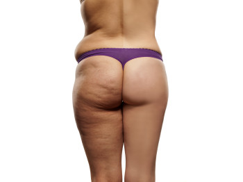 Can Thigh Lift Get Rid Of Cellulite