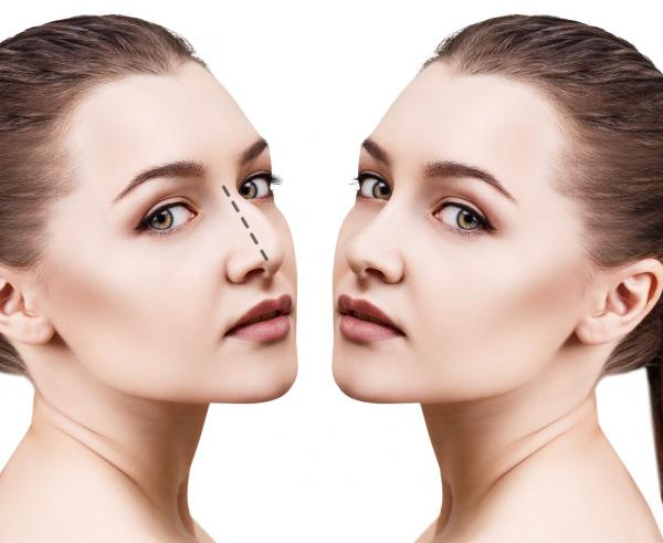 woman before and after undergoing rhinoplasty