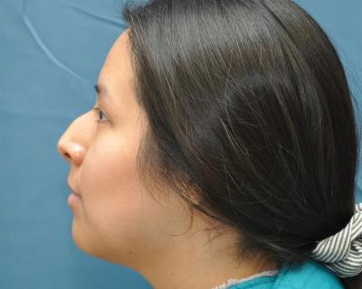 Rhinoplasty before image 1
