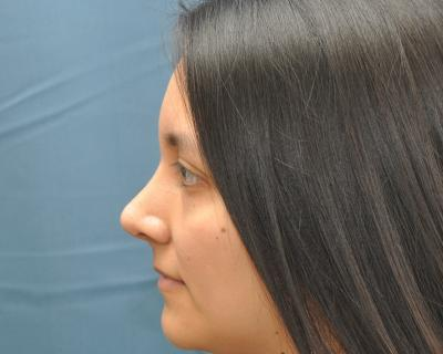 Rhinoplasty after image 3