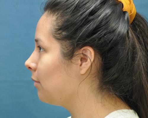 Rhinoplasty after image 1