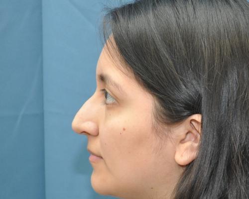 Rhinoplasty before image 3