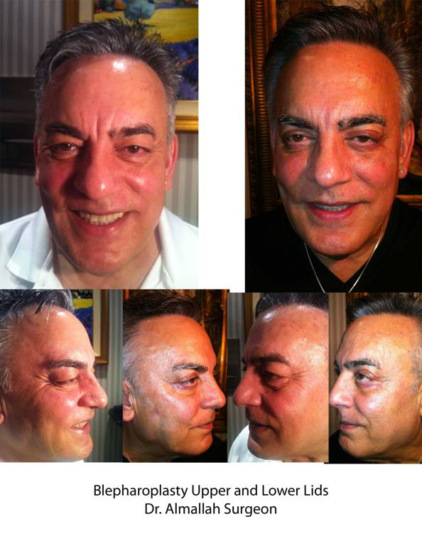 blepharoplasty before-and-after photos - Dr. Omar Almallah