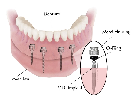 dental stock image - diagram of dental implant placement below the jaw