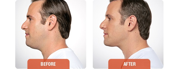 Kybella before and after -man