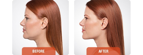 Kybella before and after - woman