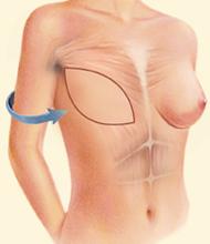 latissimus flap surgery diagram - figure 2
