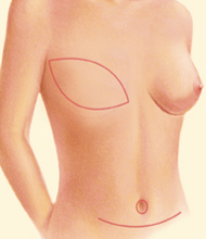 muscle-sparing breast reconstruction with DIEP Flap surgery in Denver, Colorado