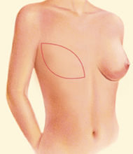latissimus flap surgery for breast reconstruction - figure 3