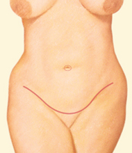 tummy tuck incision along pubic area - before