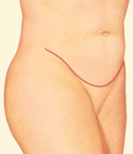 tummy tuck incision along pubic area in profile - after