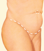 tummy tuck incision along pubic area in profile - before