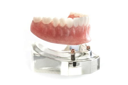 implant-supported denture for lower dental arch