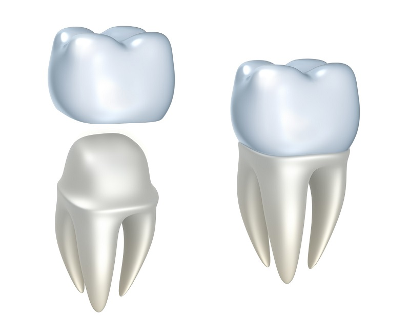 Dental crown at Meadows Dental Group
