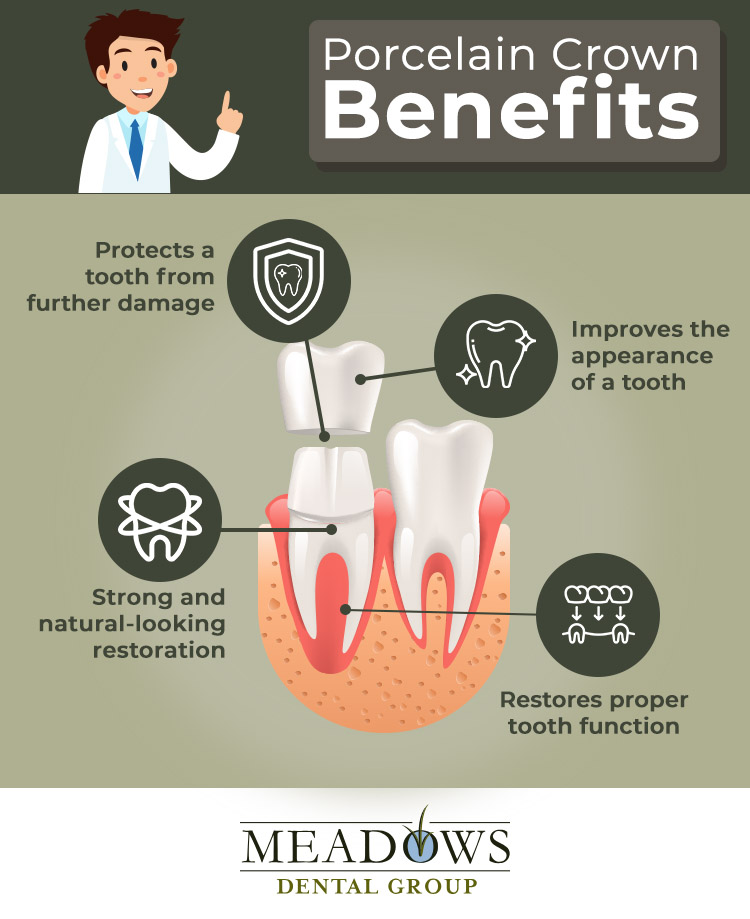 Infographic Porcelain Crown Benefits at Meadows Dental Group