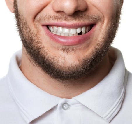 young man missing a tooth