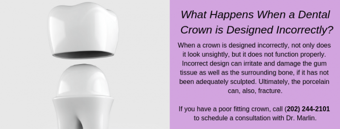 FAQ What Happens When a Crown is Poorly Designed