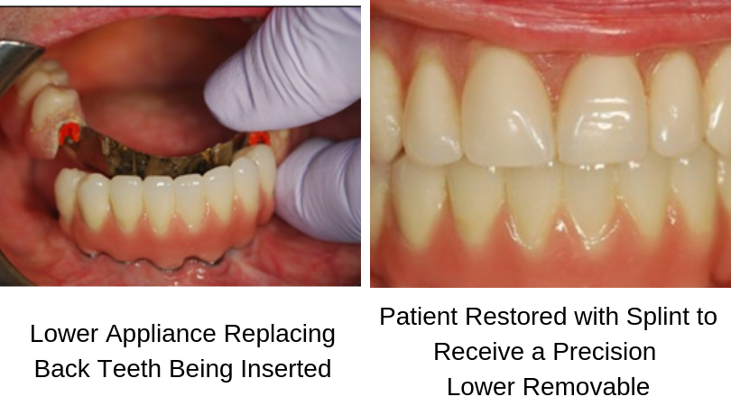 Dental Implants - Top DC Implant Dentist - Bethesda, Arlington