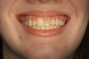hopeless tooth