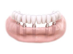 all-on-4 dental implant diagram