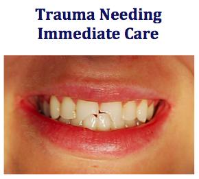 dental trauma needing immediate care