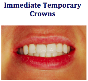 patient with immediate temporary crowns afte emergency dental treatment