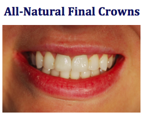 all-natural final crowns after a dental emergency
