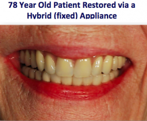 78-year-old patient with restored teeth via a fixed/hybrid device