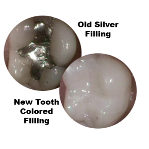 comparison of old silver filling to new tooth-colored white filling