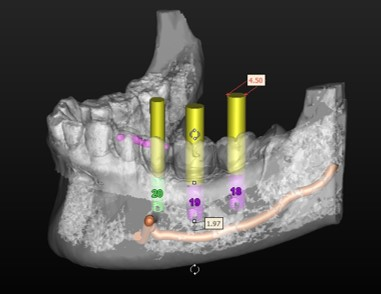 full arch implant ct scn