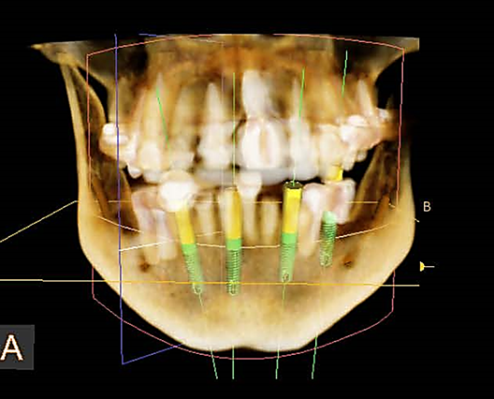 digital dental radiograph