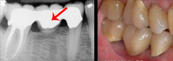 dental bridge - X-ray and completed view