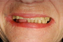 Before: Patient with Upper Denture & Lower Failing Teeth