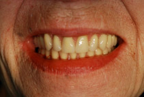 After: Patient with New Upper Denture & New Immediate Lower Denture