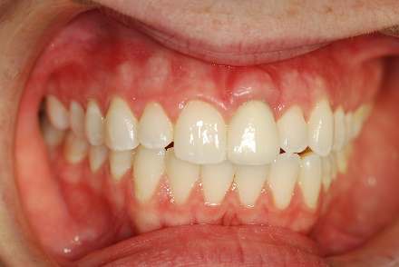 """""""Simply Radiant, Simply Natural"""" Crown Seated on Dental Implant"""