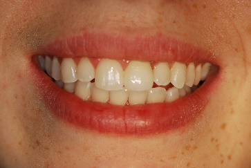 """The """"Simply Radiant, Simply Natural"""" Anterior Implant Crown"""