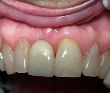 """An Unasethteic  """"Square"""" Crown Resulting from Implant Misplacement"""