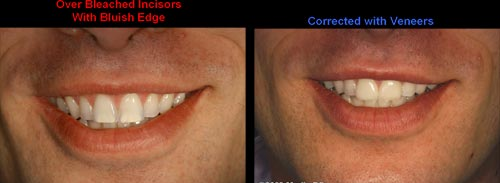 porcelain veneers correction of overly bleached teeth