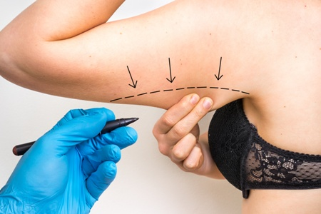 surgical guideline for arm fat reduction